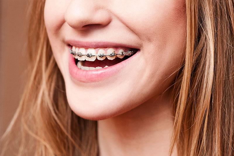 North Hollywood Orthodontics